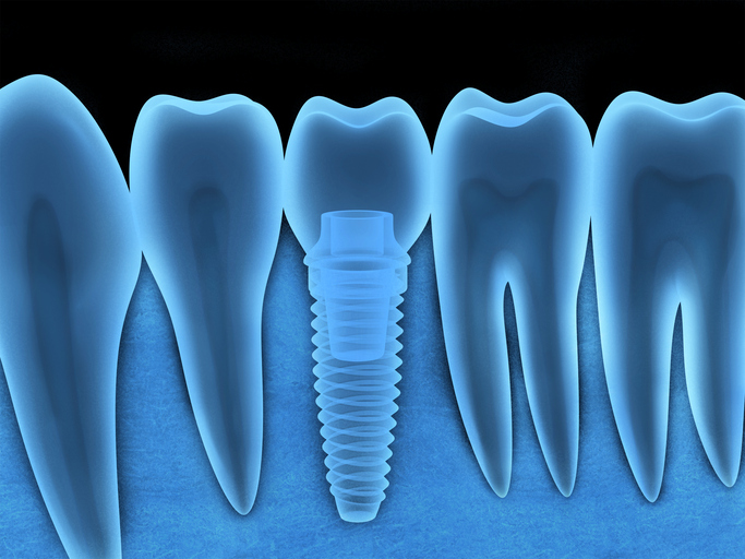 Benefits of Dental Implants diagram in Walnut Creek, CA