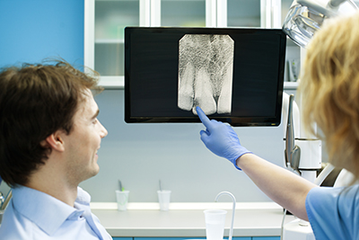 digital xray doctor and patient GettyImages 185120684 width of 400 pixels