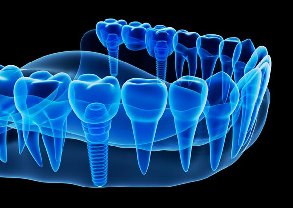 3D x-ray rendering of multiple dental implants placed in the jaw