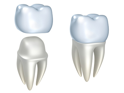 Dental Crown Dental Implant Center at Walnut Creek CA 94596