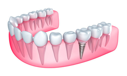 How Your Gums Adjust to Dental Implants