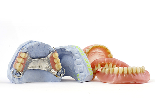A group of removable partial dentures on a white background