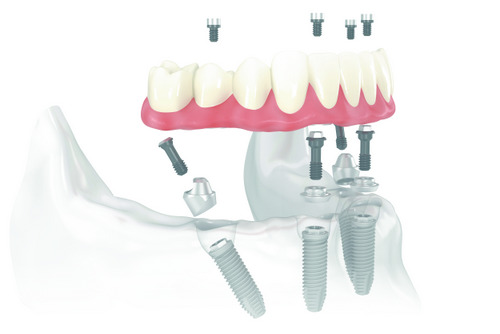 How Implants and Dentures Work Together