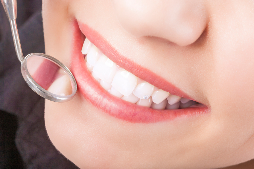 Is There Any Special Trick to Protecting Dental Bonding?